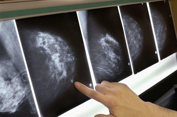 باشگاه خبرنگاران -چالشهای درمانی بیماران مبتلا به سرطان سینه