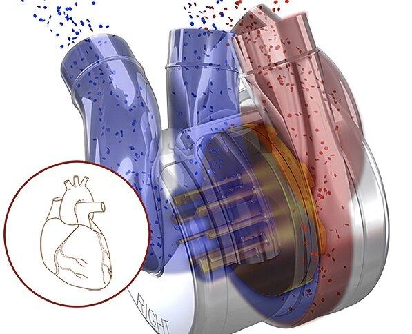 قلب بیونیکی که خون را در بدن پمپاژ میکند