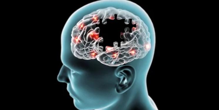 بیخوابی سبب تغییر در ساختار و عملکرد مغز میشود