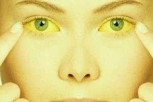 ساعت20 چهارشنبه////بیماری که موجب زردی چشم و پوست می شود+ سندرم ژیلبرت و راه های درمان آن