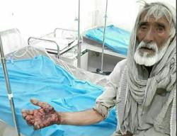 حمله گاندو به یک چوپان در جنوب سیستان وبلوچستان