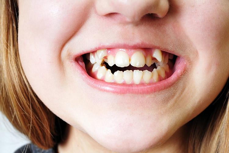 ساعت20/هیولای به ظاهر مهربان دندان