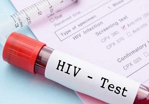 آخرین اخبار از لردگان/ معاون وزیر بهداشت: بر اساس پروتکل وزارت برای شناسایی مبتلایان به HIV اقدام میشود