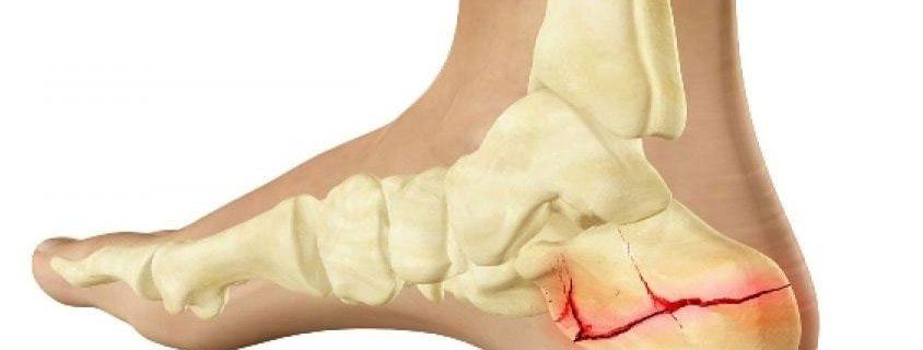 ساعت 15/درمان شکستگی پا با طب سنتی