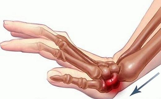 شکستگی کالیس در یک قدمی زنان است