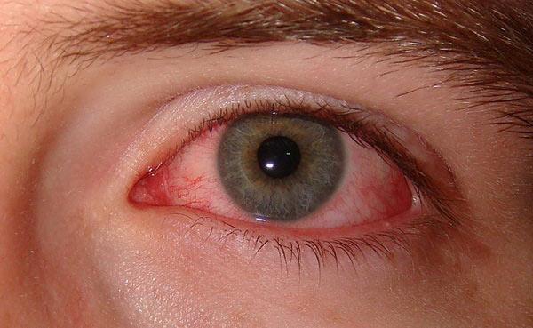 ساعت ٢٠/عاملی که می تواند حتی موجب نابینایی فرد شود