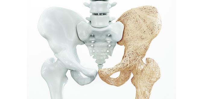 نکاتی درباره پوکی استخوان که باید آویزه گوشتان کنید / چگونه به حفظ قوام استخوانی خود کمک کنیم؟