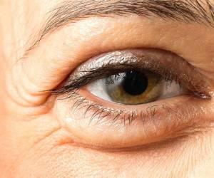 رهایی از تیرگی دور چشم و پُف زیر چشم با طب سنتی