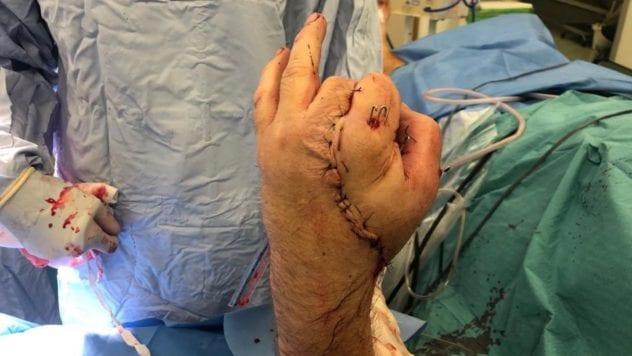 عجیبترین اعمال جراحی جهان/ از برداشتن نیمی از مغز تا بیماری با دوقلب
