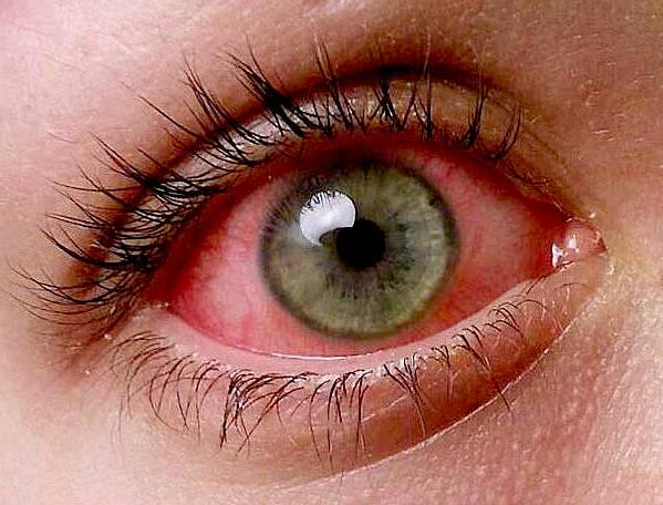 شایعترین بیماریهای چشمی را بشناسید.