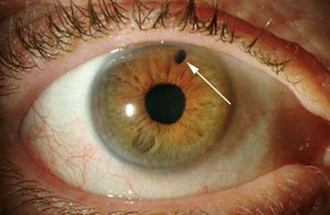 شایعترین بیماریهای چشمی را بشناسید