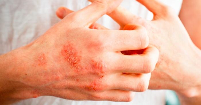 فناوری نانو و درمان پوستهای خشک و اگزمایی