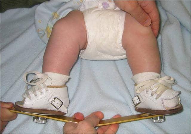 پاچنبری در کمین پسران +تشخیص و درمان