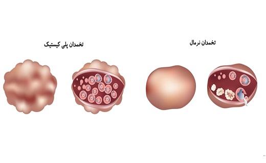 درمان سندروم تخمدان پلیکیستیک با طب سنتی