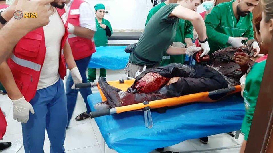 کشته و زخمی شدن ۸۳ نفر در حمله توپخانهای ترکیه به آوارگان سوری