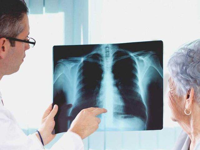 چرا عفونتهای تنفسی در مبتلایان به دیابت کشندهترند؟//تنها