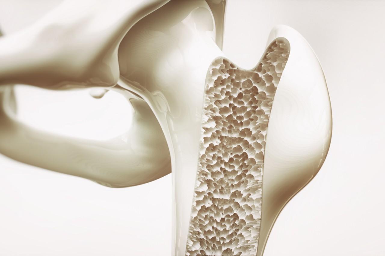 مهمترین علامت پوکی استخوان درد است