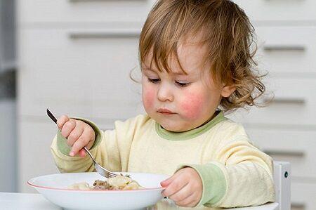 آیا آلرژی غذایی کودکان جدی است؟///صادقی