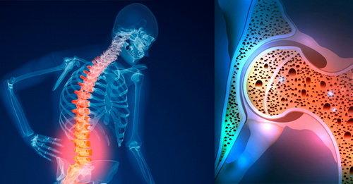 افراد بالای ۵۰ سال بیماری پوکی استخوان را جدی بگیرند///ثباتی