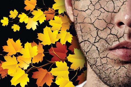 خشکی پوست در پاییز را با این روشها کنترل کنید