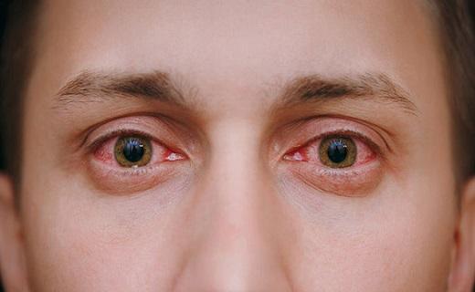 شناخت انواع بیماری و مشکلات چشم
