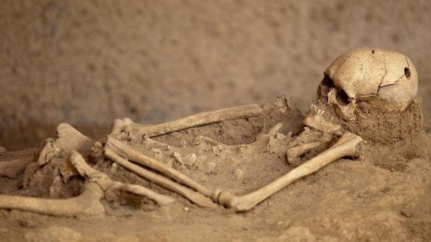 چرا اجداد ما جمجمه همدیگر را سوراخ میکردند؟