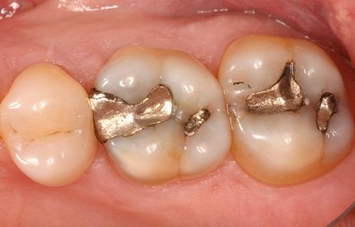 ساعت20/6مهر/عوارض پرکردن دندان با گذشت زمان