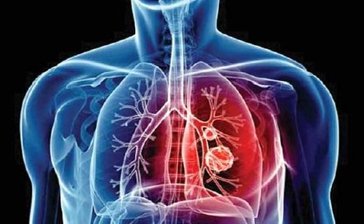 عامل بیماری قلبی چیست؟ افتاح بومگردی سه دری در یزد جهانی/ به همراه داشتن کدام دارو در کشور عراق ممنوع است؟