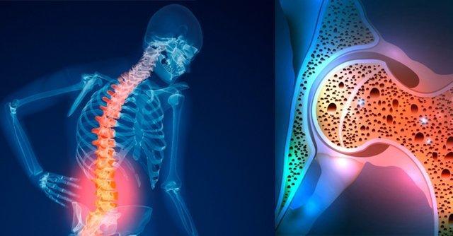 زنگ خطر پوکی استخوان در کمین جمعیت ایرانی/ عواملی که استخوان هایتان را پوک و جانتان را تهدید میکند/هشدار، این عوامل استخوان هایتان را پوک می کند