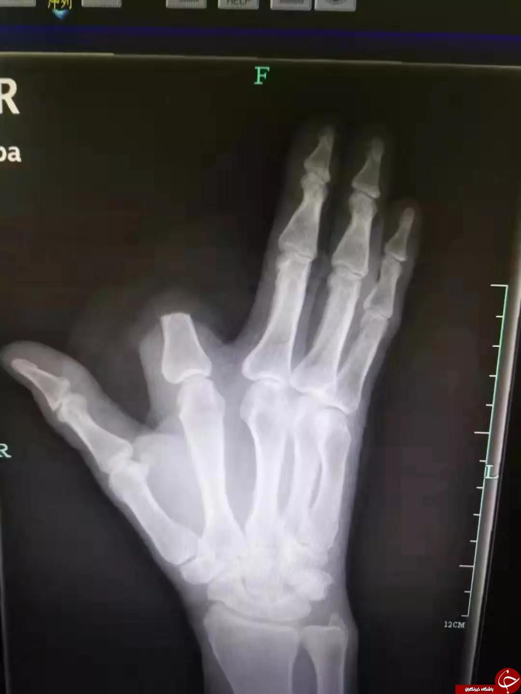 قطع شدن انگشت دست کشاورز بر اثر گاز گرفتن مار! + تصاویر//