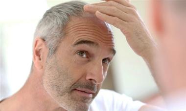 ترفند های تغذیه ای برای جلوگیری از سفیدی موها