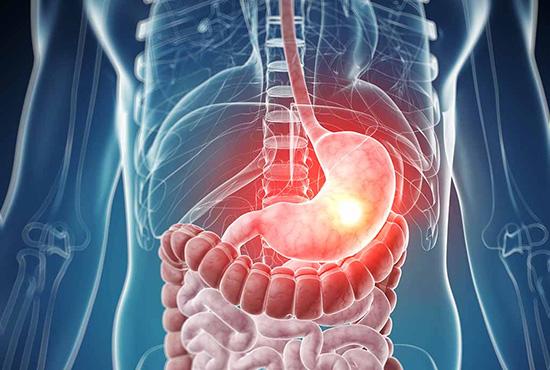 سرطانهای گوارشی؛ یک سومِ سرطانها در ایران