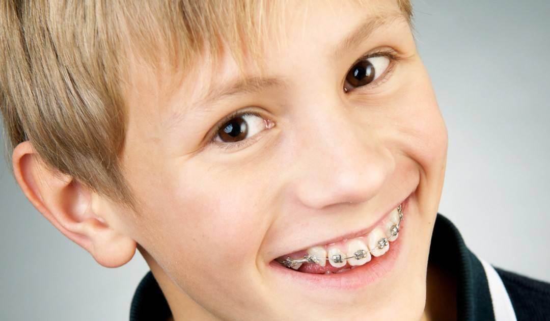 کودکان ۷ تا ۸ ساله یک ویزیت ارتودنسی بشوند