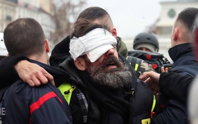 تیر «فلش بال» به چشم تظاهرکنندگان فرانسوی خورد، اما رسانهها و نهادهای بینالمللی کور شدند/ از نابینایی تا قطع عضو؛ نتیجه تاکتیکهای مرگبار پلیس پاریس! + تصاویر