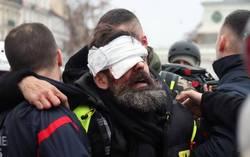 از نابینایی تا قطع عضو؛ تاکتیکهای مرگبار پلیس پاریس/ تیر «فلش بال» به چشم تظاهرکنندگان خورد اما رسانههای بینالمللی کور شدند! + تصاویر