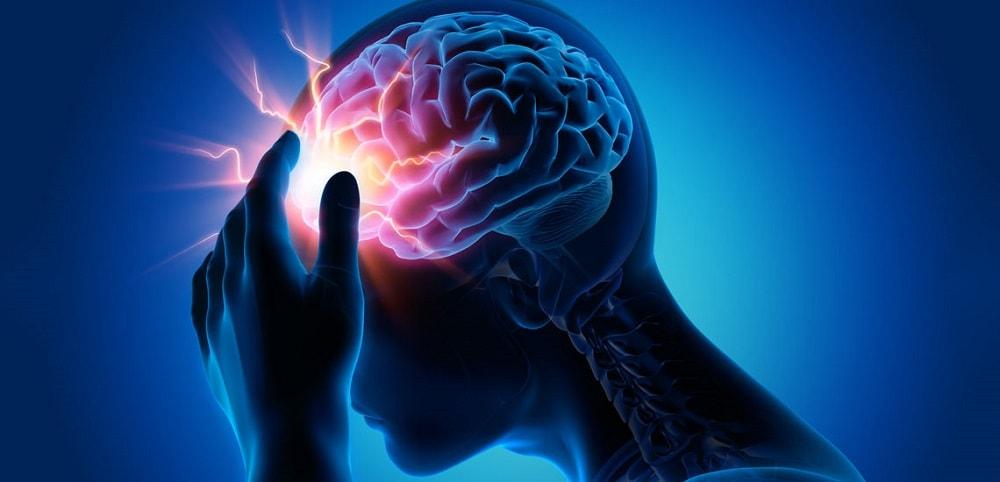 کاهش چشمگیر سن سکته مغزی در کشور