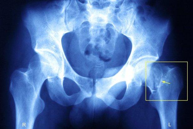 باشگاه خبرنگاران -فعالیت فیزیکی ریسک شکستگی لگن را در زنان مسن کاهش میدهد