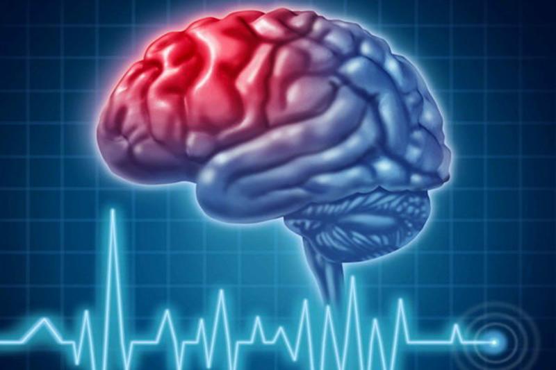 کاهش چشمگیر سن شیوع سکته مغزی در کشور / ابتلا روزانه ۴۰۰ سکته مغزی