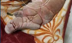 ماجرای انتقال بیمار پافیلی به بیمارستان امام خمینی (ره) چه بود؟