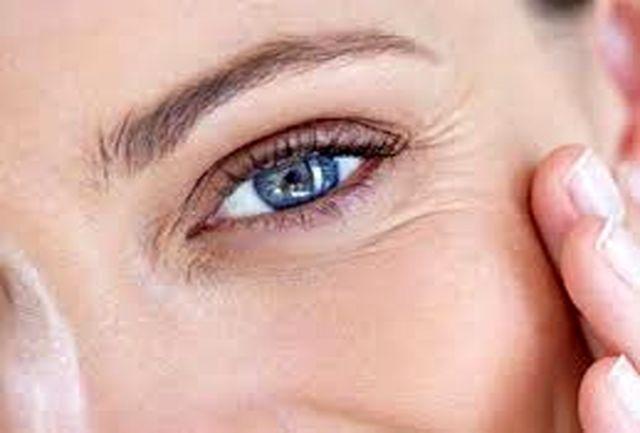 سه سوته چروکهای زیر چشم را برطرف کنید