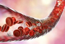 بیماریها را بر اساس گروه خونی خود بشناسید