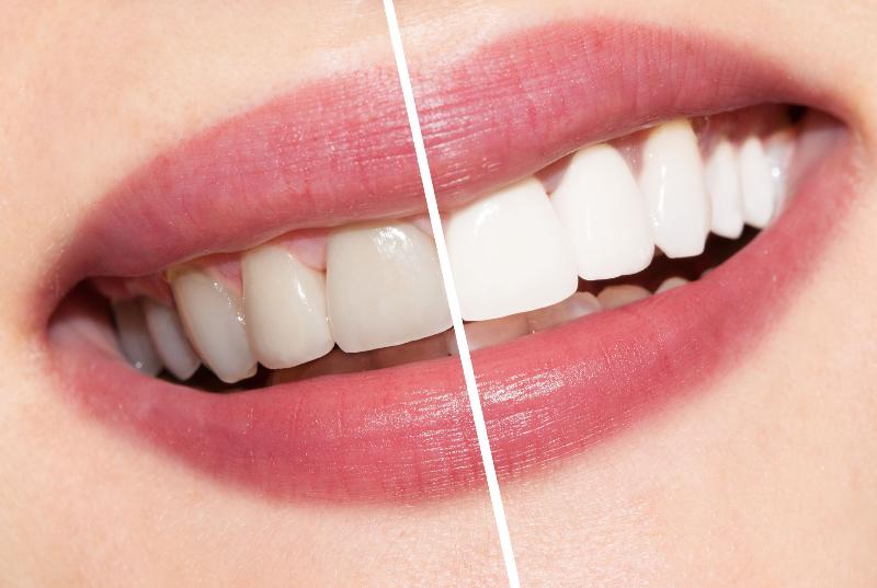 باشگاه خبرنگاران -عاداتهای رایج اشتباهی که باعث زرد شدن دندان هایتان میشود