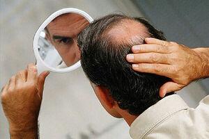 نقش ویتامینها در ریزش مو
