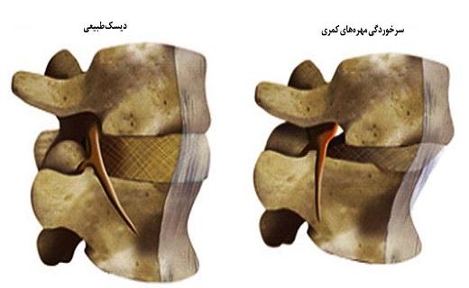 آسیب ستون فقرات کمری که بیشتر به سراغ زنان میآید