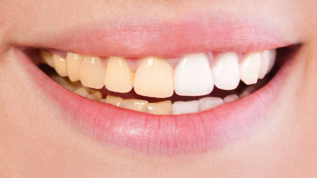 دندان درد و عوارض آن