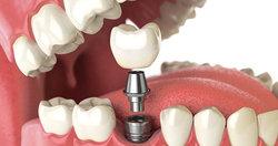 ایمپلنت دندان را چه کسانی نباید انجام دهند؟