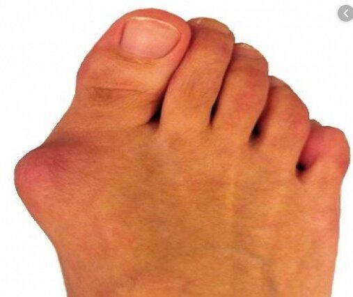 چگونه انحراف انگشت شست پا را درمان کنیم؟