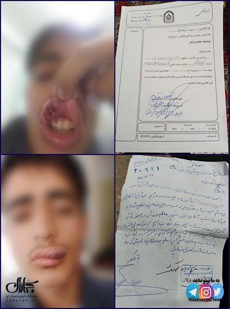 جراحت شدید دانش آموز زنجانی بر اثر ضرب و شتم معلم ورزش!+ عکس