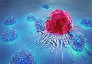 درمان سرطان استخوان