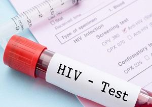 انجام آزمایش اچ آی وی برای خانمهای باردار در چهارمحال و بختیاری